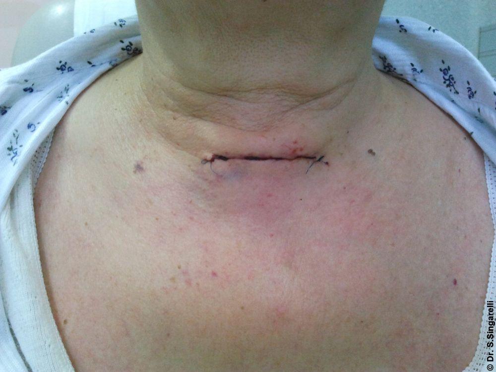 Operazione una conseguenza varicosity dopo operazione